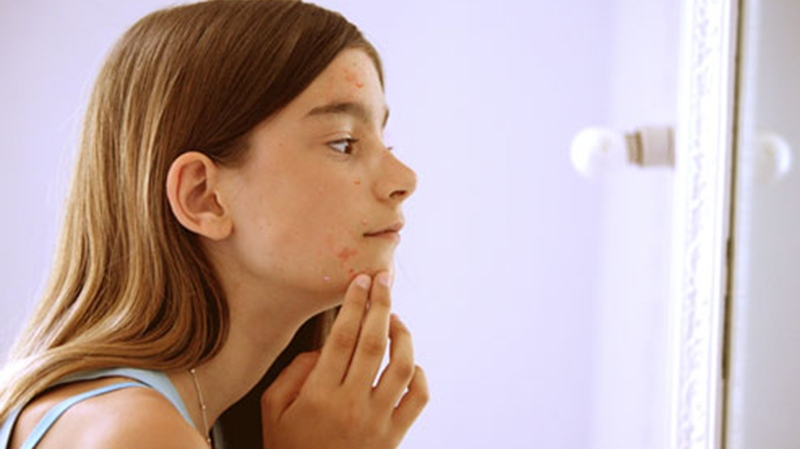 Beauty-Tips-Acne-Control-For-Preteens